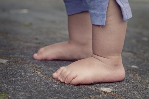 비만한 아이는 체중이 늘면서 발에 전해지는 하중이 증가해 통증이 발생할 수 있다.